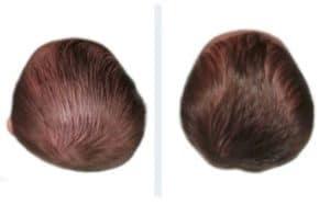 Abans i després plagiocefalia 7 mesos