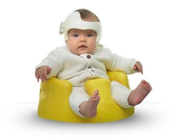 bambino con plagiocefalia
