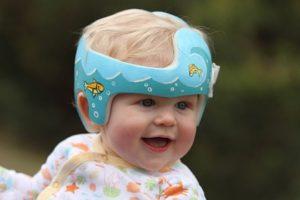 bebé con braquicefalia