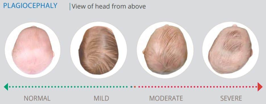 Degrees of plagiocephaly