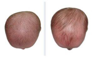 Bambino di 6 mesi con trattamento doc band