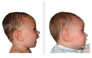 bambino di 8 mesi con brachicefalia