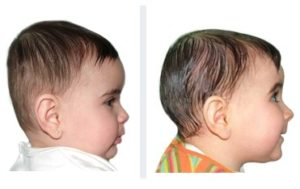 baby with brachycephaly