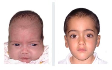 baby with scaphocephaly