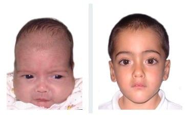 bambino con scafocefalia
