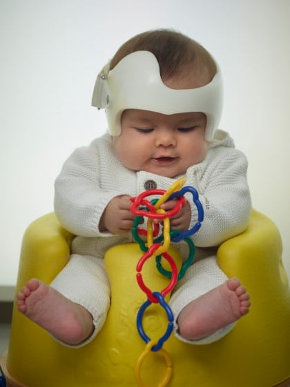 baby with plagiocephaly and doc band