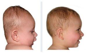 baby brachicefalia
