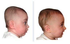 6 months baby brachycephaly