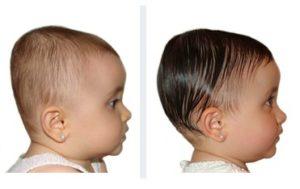 Brachicefalia infantile da 9 mesi