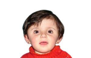 Brachicefalia bilaterale 20 mesi