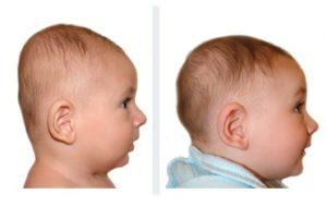Brachycéphalie bébé de 4 mois