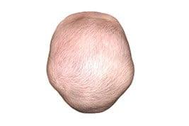 Клеверовидный череп