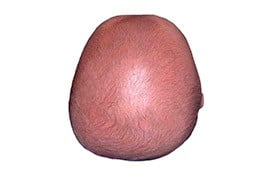 Cranio-cone mozzato