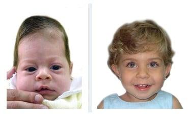 ребенок со скафоцефалией