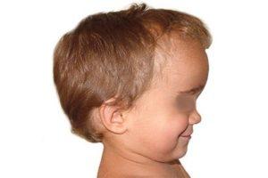 escafocefalia non operato bambino