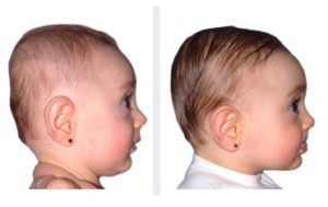 results with doc band baby brachiocephaly