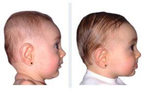 risultati con la brachiocefalia del bambino doc band